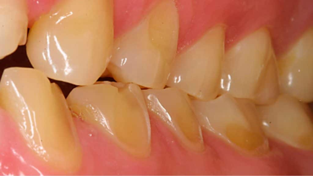 Foto1: Fotografía de erosión dental observada